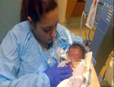 الطفل بلا جلد.. حالة نادرة في مستشفى أميركي