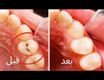 الملح والقرنفل أفضل طريقه للتخلص من تسوس الاسنان