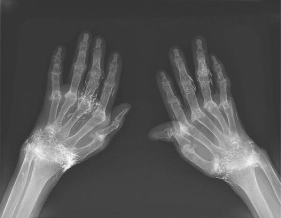 شاهد.. الأشعة السينية تكشف احتواء يد امرأة على الذهب