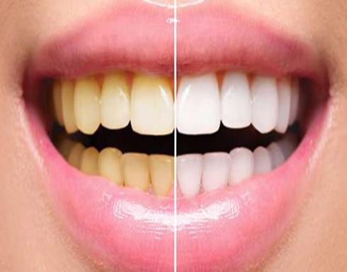 9 طرق منزليّة لتبييض الأسنان