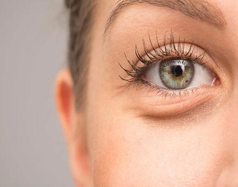 9 أشياء مفاجئة تسبب الهالات السوداء تحت العين منها ضوء الشمس