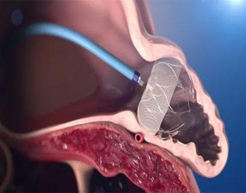بالفيديو : أداة ثورية تقلل من خطر الجلطات الدموية
