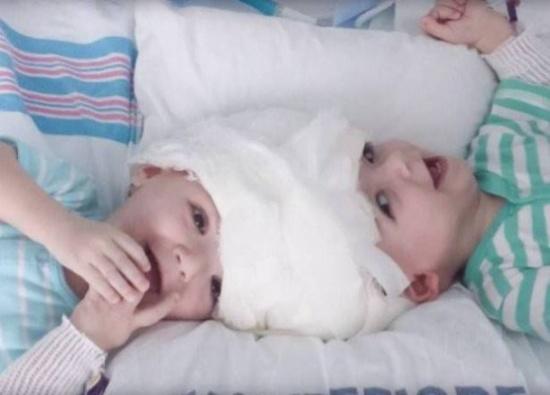 فيديو مؤثر.. كيف تقابل أول توأم سيامي بعد فصل رأسيهما
