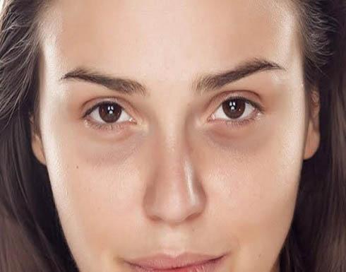 3 خطوات بسيطة لإخفاء الهالات السوداء تحت العين