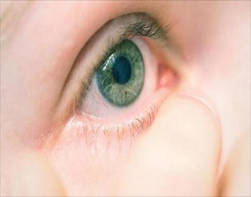 ما أسباب انتفاخ العيون رغم النوم الكافي؟