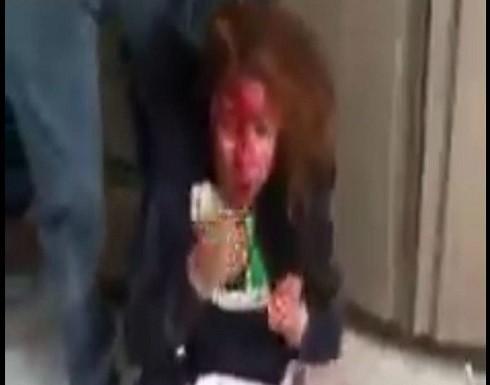 معركة دامية بالأسلحة البيضاء بين طالبتين بمدرسة مصرية .. بالفيديو