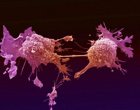 احذر.. أولى علامات السرطان تظهر على الجلد