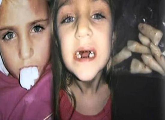 فيديو: صوّرت ابنتها خفية عند طبيب الأسنان.. وما فعله بالصغيرة كارثة!