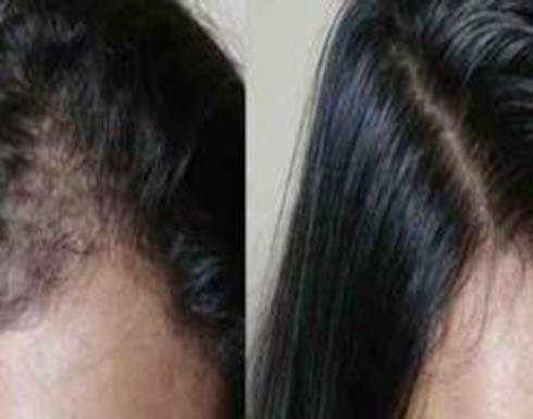 نوع مهمل من البذور يعالج تساقط الشعر