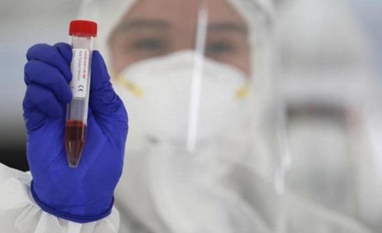 14 وفاة و803 إصابات جديدة بفيروس كورونا في الأردن