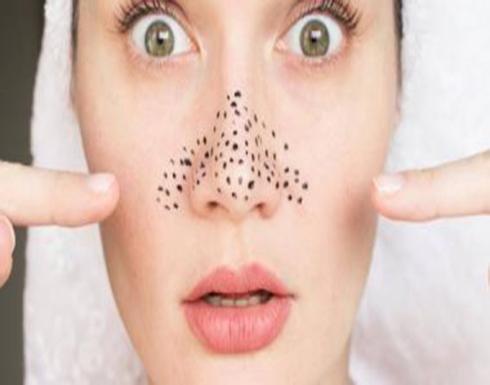 4 وصفات لعلاج الرؤوس السوداء بالزيوت الطبيعية