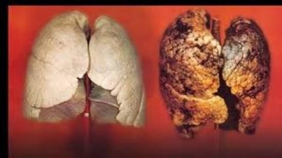 أفضل علاج من3 مكونات بسيطة لتنظيف الرئة من السموم داخل المنزل