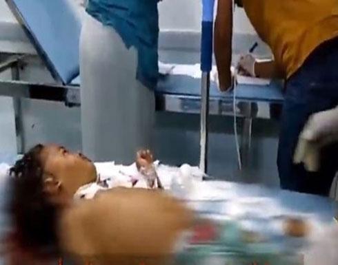 إصابة 6 مدنيين بينهم 4 أطفال بقصف حوثي على حيس.. فيديو