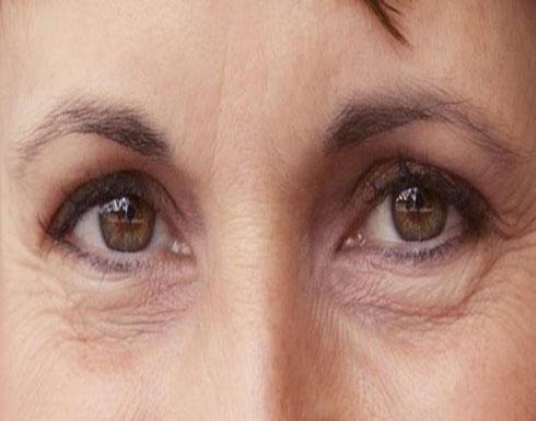 طريقة عمل ماسك لعلاج تجاعيد العينين