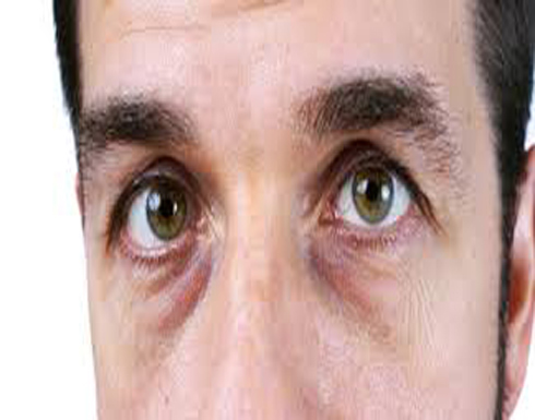 5 أسباب غير النوم تسبب انتفاخ العين.. ما هي؟