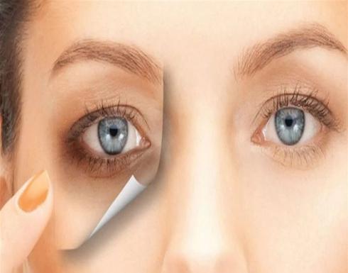 وصفات طبيعية تخلصك من الهالات السوداء حول العينين