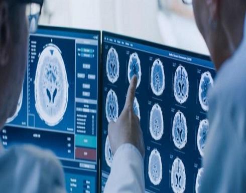 """""""دراسة بريطانية"""": كورونا يؤثر على الدماغ ويسبب انخفاض معدل الذكاء"""