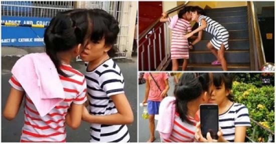 بالصور: التصاق فتاتين بطريقة غريبة في منطقة الرأس!