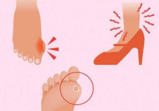 كيفية التخلّص من مسامير القدم بواسطة مكوّنات طبيعية!