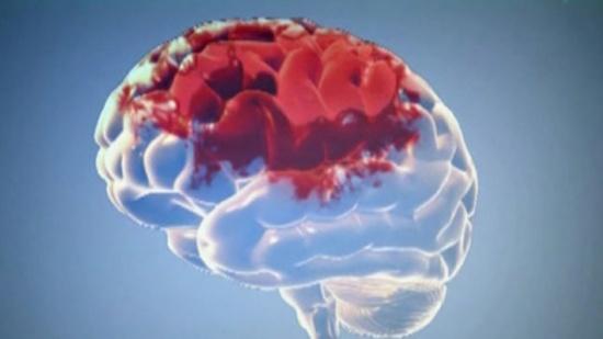 علماء: عدم تناول الافطار صباحا يسبب الجلطة الدماغية