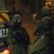 إحداها خطيرة- 4 اصابات برصاص الاحتلال برام الله