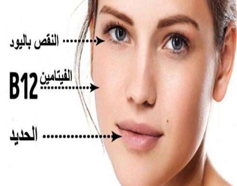 5 علامات عن النقص بالفيتامينات مكتوبة على وجهك