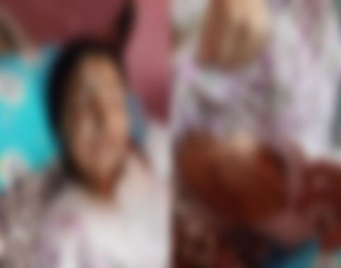 فتاة في دعوى طلاق بمصر : عذبني مع والدته بالماء المغلي لرفضي الزوجة الثانية