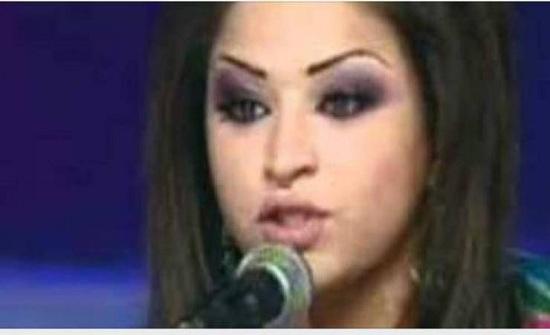 صورة  لن تصدقوا من هي هذه النجمة العربية قبل عمليات التجميل