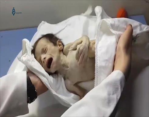 مطالبة أممية بإجلاء 400 مريض من غوطة دمشق