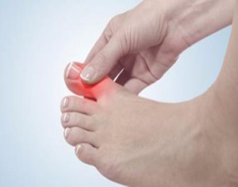 الأملاح الزائدة ودوالى الساقين أبرز أسباب تورم الأصابع