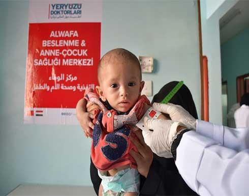 """20 مليون شخص بحاجة إلى مساعدة باليمن ونداءات لفك الحصار عن """"العبدية"""""""