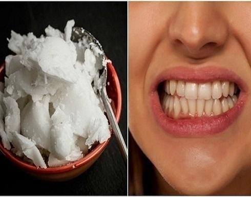 طرق طبيعية لتبييض الأسنان.. جرّبوها