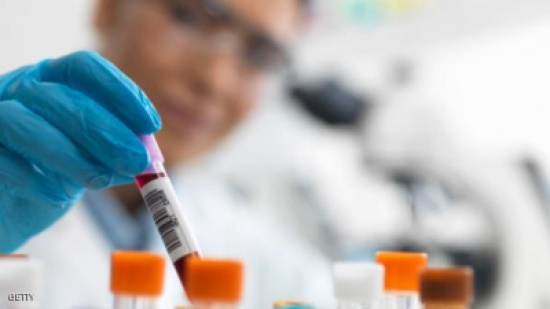 """اكتشاف فيروس يجعل البشر أكثر """"غباء"""""""