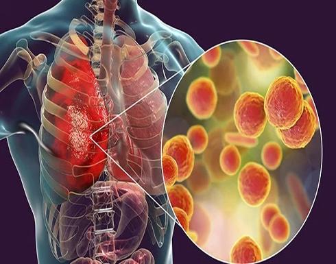 8 أشخاص مهددون بمضاعفات خطيرة بسبب الالتهاب الرئوي ابرزهم مرضى القلب والمدخنون