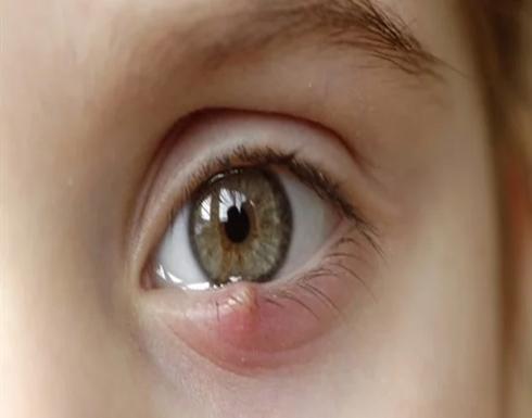 9 أسباب وراء ظهور الكيس الدهني بالعين ابرزها  النظام غذائي