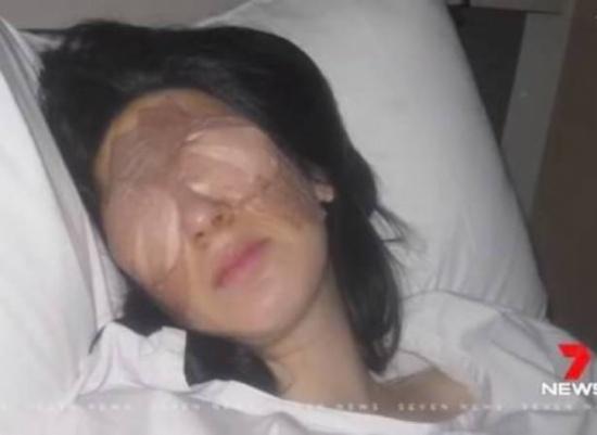 بالفيديو: مرض نادر.. عينا هذه المرأة تقفلان 3 أيام متتالية