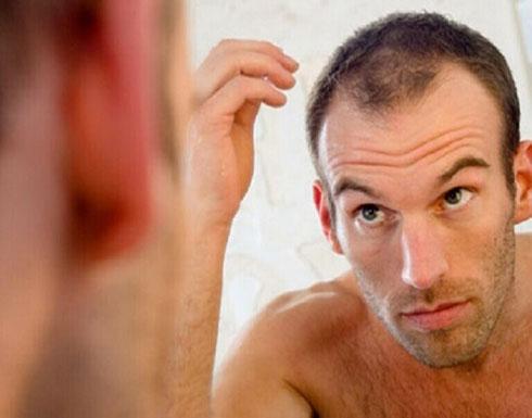 """مجلة طبية: تساقط الشعر أحد الأعراض الهامة للإصابة بـ""""كوفيد - 19"""""""