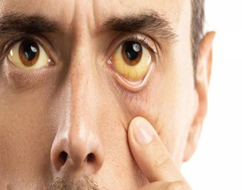 اصفرار الجلد والعينين.. من أعراض سرطان الأوعية الصفراوية