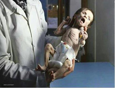 الغوطة الشرقية.. الوضع الإنساني الكارثي أو الحملة الإعلامية الوحشية؟