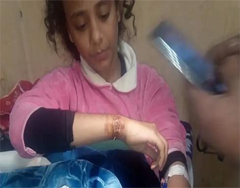 تعذيب طفلة على يد والدها وزوجته.. ووزيرة مصرية تتدخل