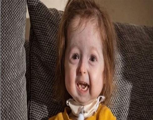 """تغيرات فريدة تحول طفلة بعمر سنتين إلى """"جدة"""" (صورة)"""