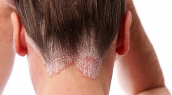العدوى أبرز سبب للإصابة بالصدفية