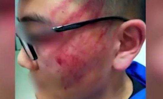 بالفيديو: 12 صفعة من الاستاذ.. أصابت التلميذ بارتجاج دماغي!