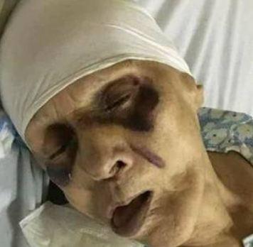 مسنة مصرية عذبها ابنها حتى الموت إرضاء لزوجته!!!!