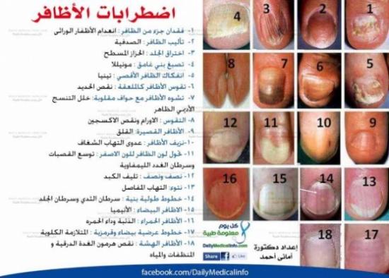 أظافرك عنوان صحتك.. هل تعاني من هذه الأمراض؟