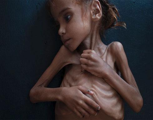 رحيل الطفلة التي فتحت عيون العالم على مأساة اليمن