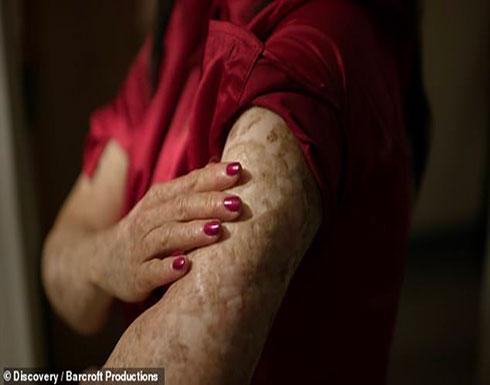 بالصور : مرض نادر يجبر امرأة على البقاء في الظلام لنصف قرن!