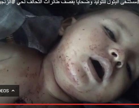 صور : قصف مستشفى البتول للأطفال في الموصل