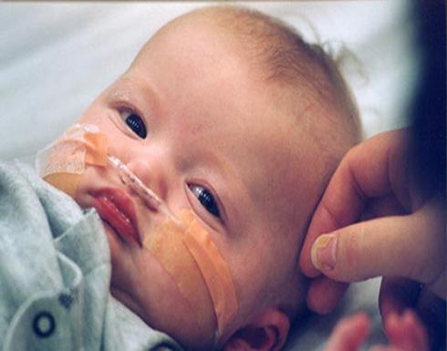 أسباب إصابة الأطفال بالسرطان..وتفاصيل تعرفي عليها