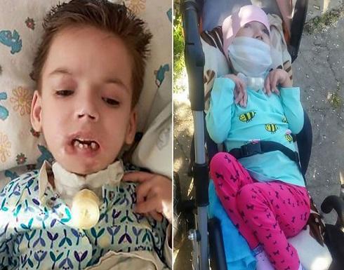 بالصور : انزعجت من بكاء طفلتها المريضة فقضمت شفتها بوحشية